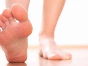 3 степени продольного плоскостопия - симптомы у детей и взрослых, лечение