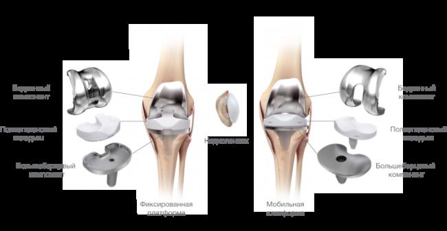 Виды коленных суставов