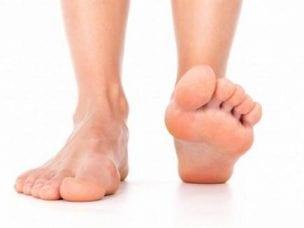 5 видов плоскостопия у детей и взрослых