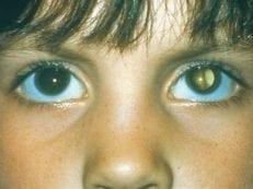 6 видов врожденной катаракты — причины возникновения и лечение