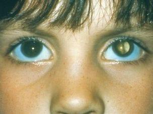 6 видов врожденной катаракты