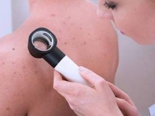 8 возможных причин кожной сыпи, о которых нужно знать каждому