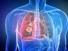 Аденокарцинома  — симптомы, хирургическая, лучевая и химиотерапия, инновационные методы и профилактика