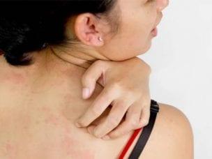 Аллергия на пенициллин - причины, взятие пробы и профилактика