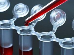 АЛТ в крови - функции фермента, значения нормы и причина отклонений