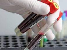 Анализ крови на аллергены: подготовка и расшифровка