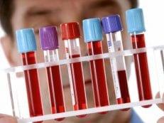 Анализ крови на железо — как подготовиться и сдавать