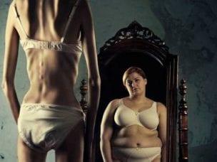 Анорексия – симптомы и признаки у девушек