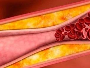 Артериальный тромбоз – причины и предрасполагающие факторы, диагностика и методы лечения