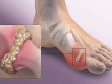 Артроз большого пальца ноги лечение и методы профилактики, симптомы болезни