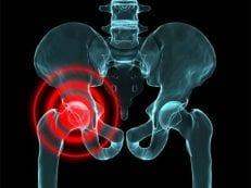 Асептический некроз головки тазобедренного сустава: причины и лечение