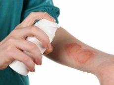 Атопический дерматит — лечение острого и хронического, причины возникновения и симптомы, диагностика