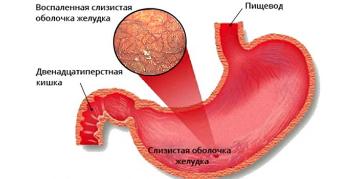Проявления атрофического гастрита