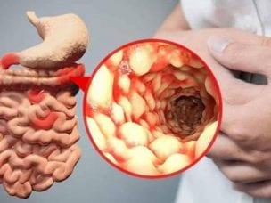 Болезнь Крона - симптомы, диагностика и лечение