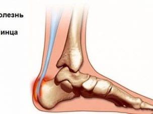 Болезнь Шинца - пяточной кости у детей и взрослых