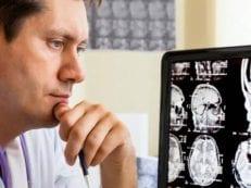 Цереброваскулярная болезнь — первичные проявления и осложнения при прогрессировании заболевания