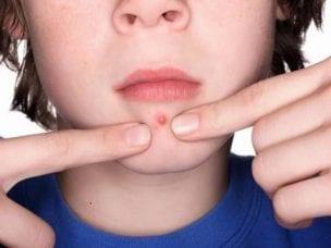 Чирьи - что это такое, как выглядит фурункул, чем лечить у ребенка и взрослого