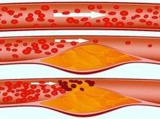 Чистая гиперхолестеринемия — виды и проявления заболевания, лечение медикаментами и народными средствами