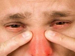 Что такое гайморит у взрослых и детей - причины, симптомы и лечение