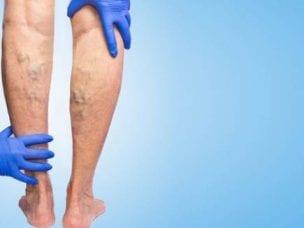 Что такое тромбофлебит нижних конечностей