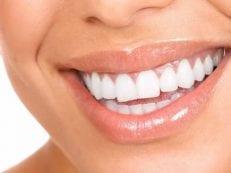 Что такое виниры для зубов: установка и отзывы