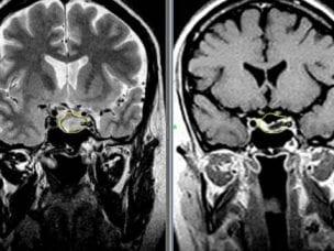 Диагностика аденомы гипофиза - симптомы и признаки заболевания у мужчин и женщин