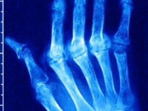 Диагностика ревматоидного артрита: принципы, методы, цели исследований