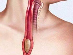 Дисфагия пищевода - причины, симптомы и лечение