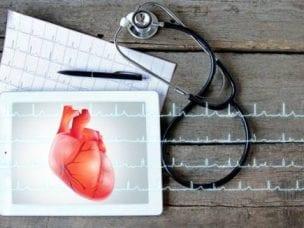 ЭКГ признаки гипертрофии левого желудочка сердца