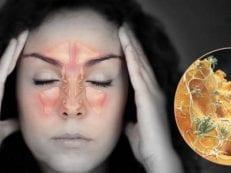 Экссудативный гайморит односторонний и двухсторонний — как лечить