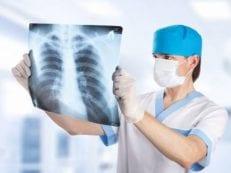 Эмфизема легких: как лечить заболевание