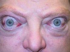 Эндокринная офтальмопатия – симптомы заболевания