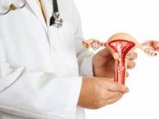 Фибромиома матки — признаки и виды болезни, медикаментозная терапия, хирургическое вмешательство