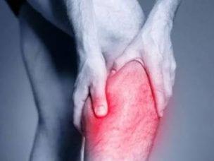 Флебит - причины, симптомы и лечение