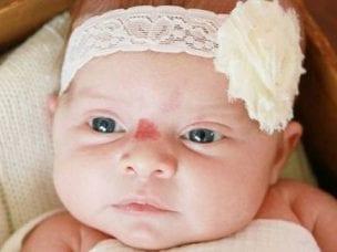 Гемангиома у детей - причины возникновения и локализация опухоли