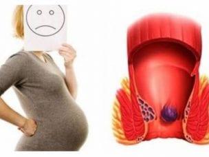Геморрой при беременности - как лечить в домашних условиях