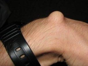 Гигрома сустава - симптомы, лечение и удаление