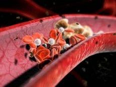 Гиперхолестеринемия — почему возникает, передача по наследству, терапия и прфилактика