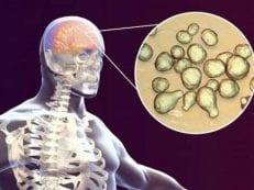 Гнойный менингит — причины, признаки первичного и вторичного, последствия