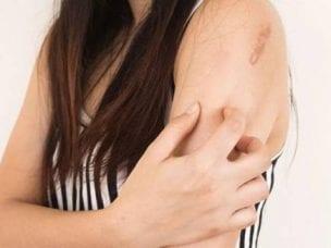 Грибковые заболевания: симптомы, лечение и профилактика