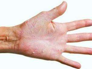 Грибок на руках - причины и пути заражения, диагностика, методы лечения и профилактические меры