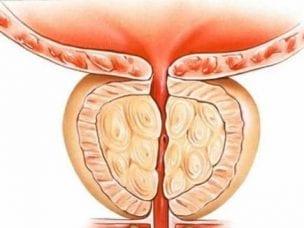 Хронический простатит - симптомы, причины и признаки заболевания