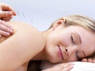 Иглоукалывание - польза и вред лечения