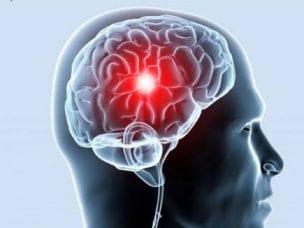 Инсульт мозжечка - причины возникновения, первые симптомы, диагностика, лечение, последствия и прогнозы