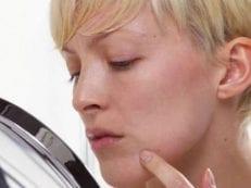 Как лечить папилломы — методы и средства борьбы с вирусом, способы удаления и лечения новообразований