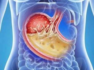 Как понизить кислотность в желудке