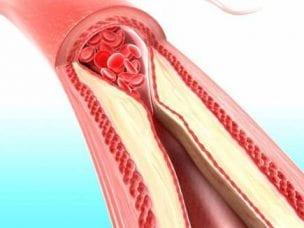 Как улучшить кровообращение медикаментами, упражнениями и дыханием