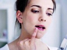 Как вылечить герпес на губах навсегда — препараты и народные средства лечения симптомов вируса
