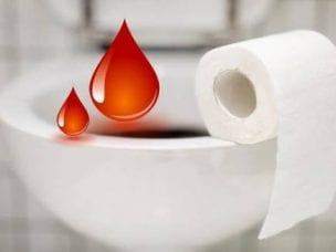 Кал с кровью - причины возникновения у мужчин и женщин
