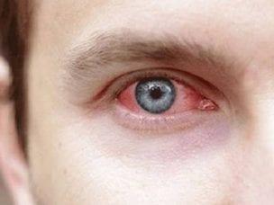 Кератит глаза у человека - симптомы и лечение